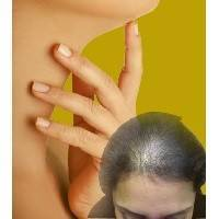 При ослаблении функции щитовидной железы выпадают волосы: что делать?