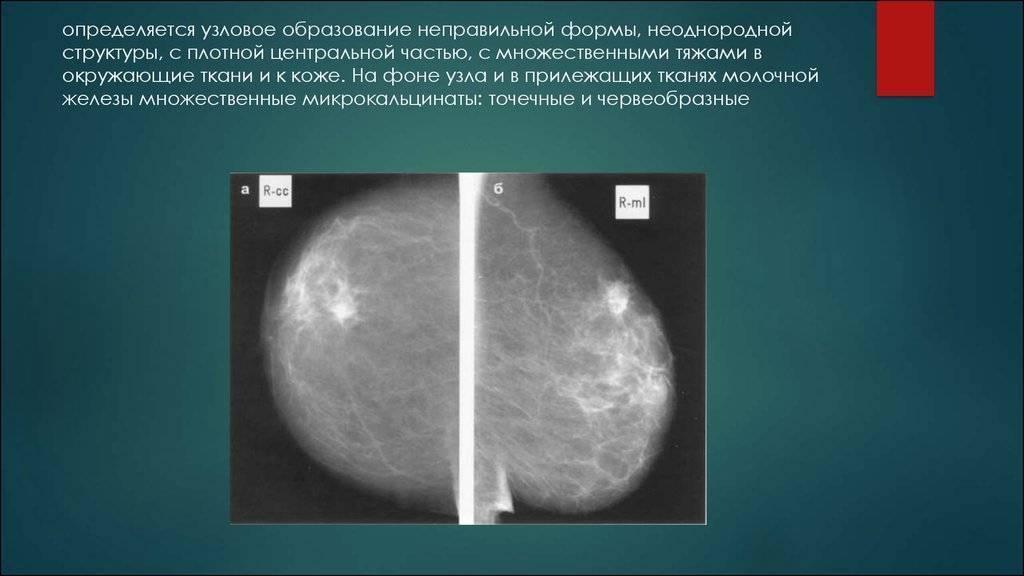 Предстоит операция на груди | метки: узелок, узел, молочный, железа, удаление