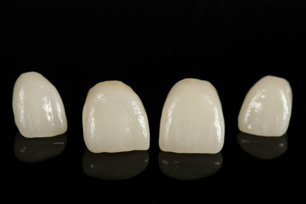 Керамические коронки на зубы - цены, отзывы. стоматологическая клиника adn в москве.