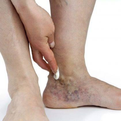 Варикозное расширение вен нижних конечностей: симптомы и лечение