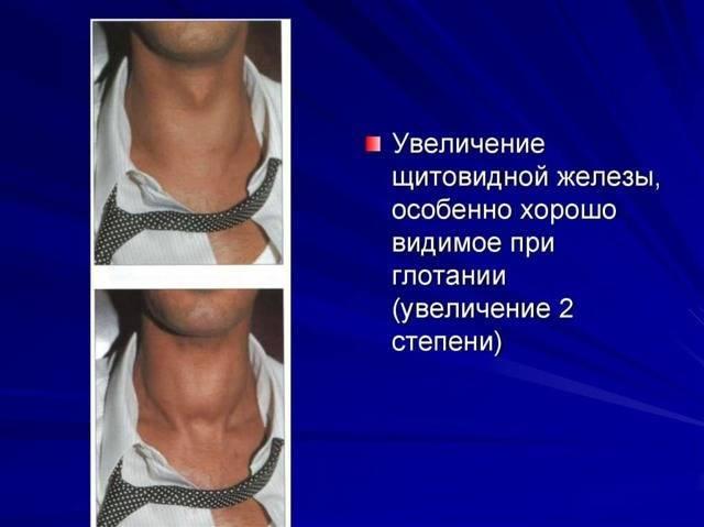 Увеличена щитовидка 2 степени: