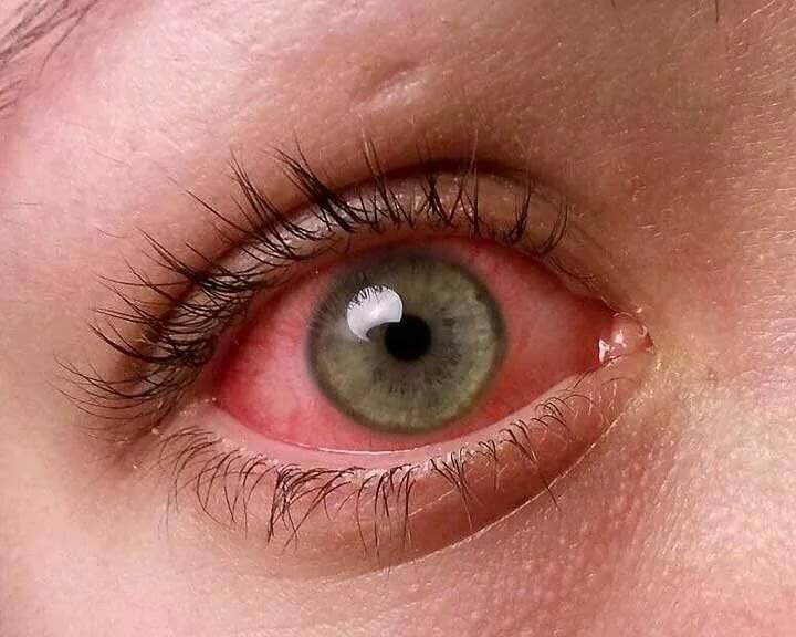 чем закапать ребенку глаза при воспалении