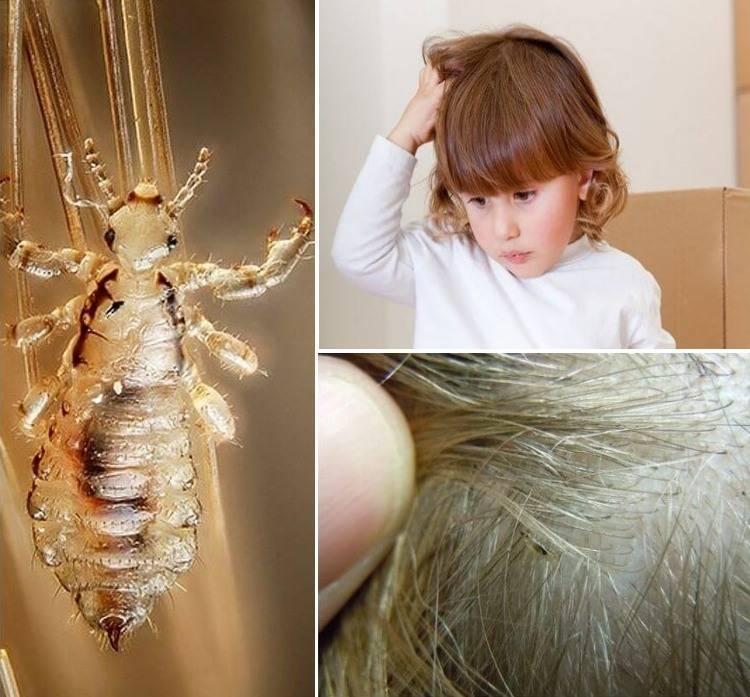 От чего появляются вши на голове: причины, признаки и лечение