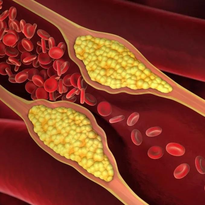 Как контролировать уровень холестерина?