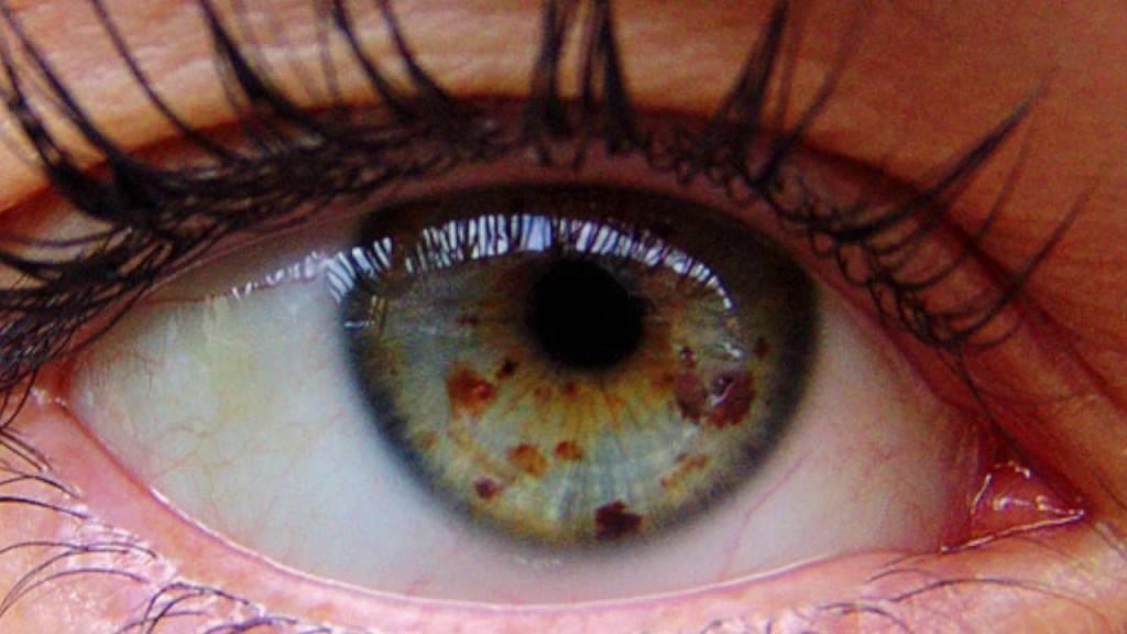 белые точки у глаз
