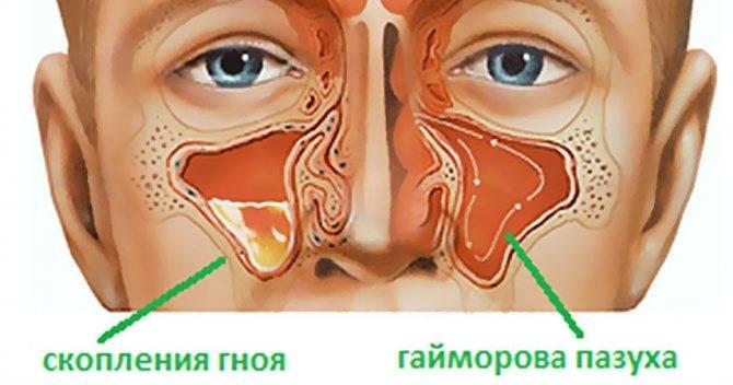 Головная боль при гайморите: симптомы, причины, лечение