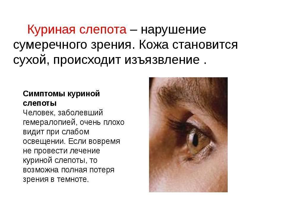Ухудшение зрения: симптомы, причины, лечение, что делать.