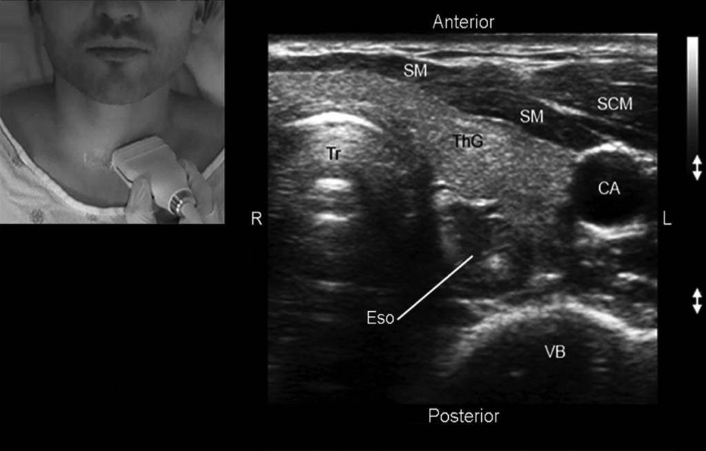 Гипоплазия щитовидной железы у детей и взрослых