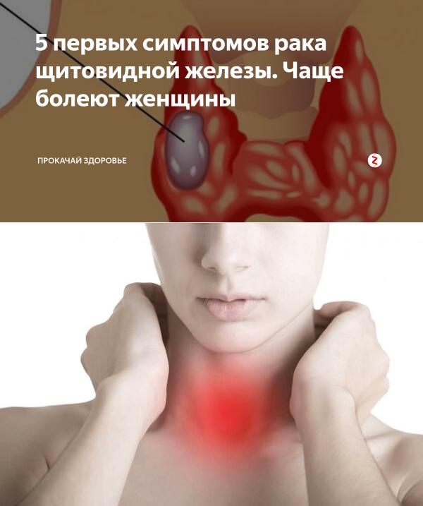 узи признаки рака щитовидной железы