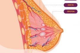 можно ли делать физиопроцедуры при мастопатии