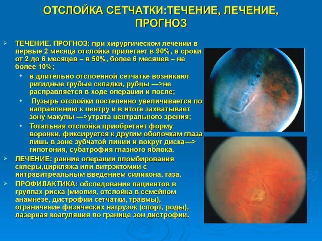 Дистрофия сетчатки глаза – что это такое? дистрофия сетчатки – симптомы, лечение