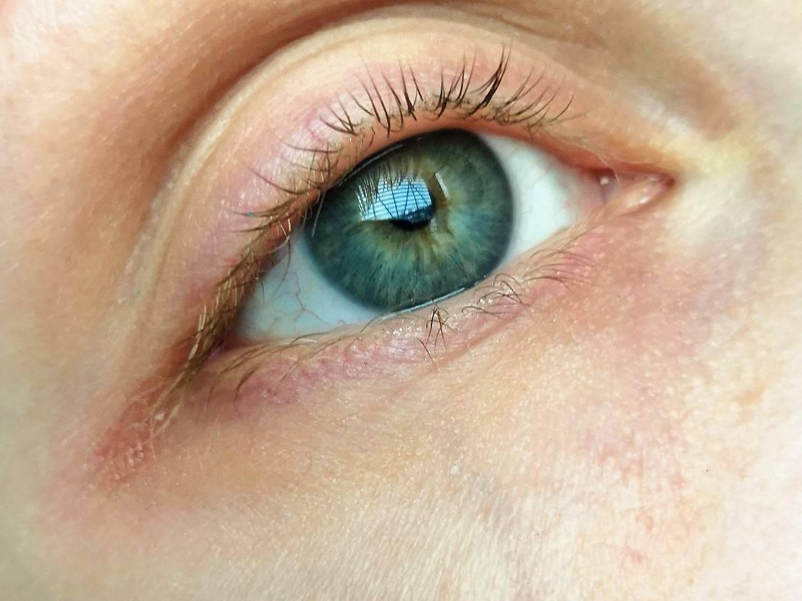 Грибок на глазах: виды, признаки и способы лечения