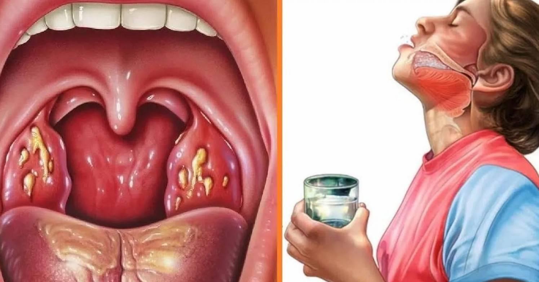 как можно заразиться ангиной от больного