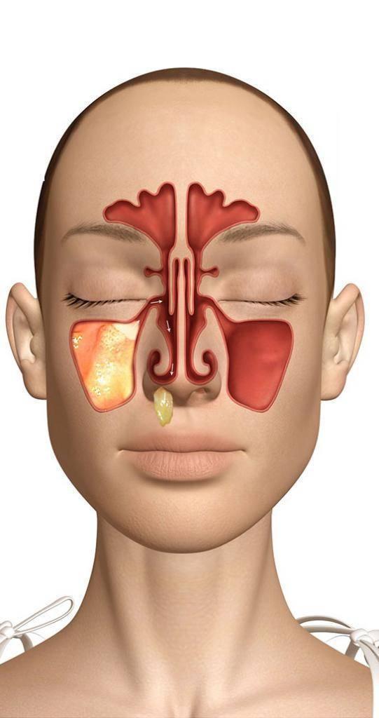 Гнойный гайморит — причины, симптомы и лечение