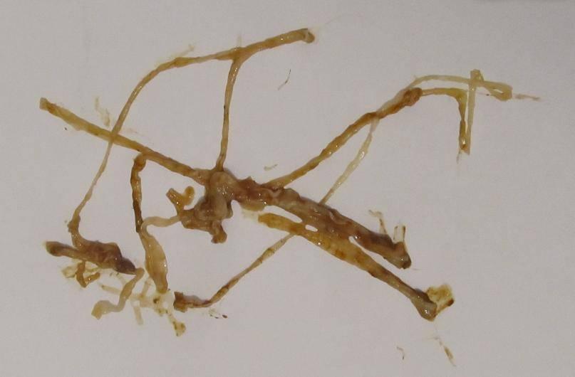 черви в кале человека