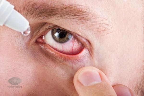 Как закапать капли в конъюнктивальный мешок глаза