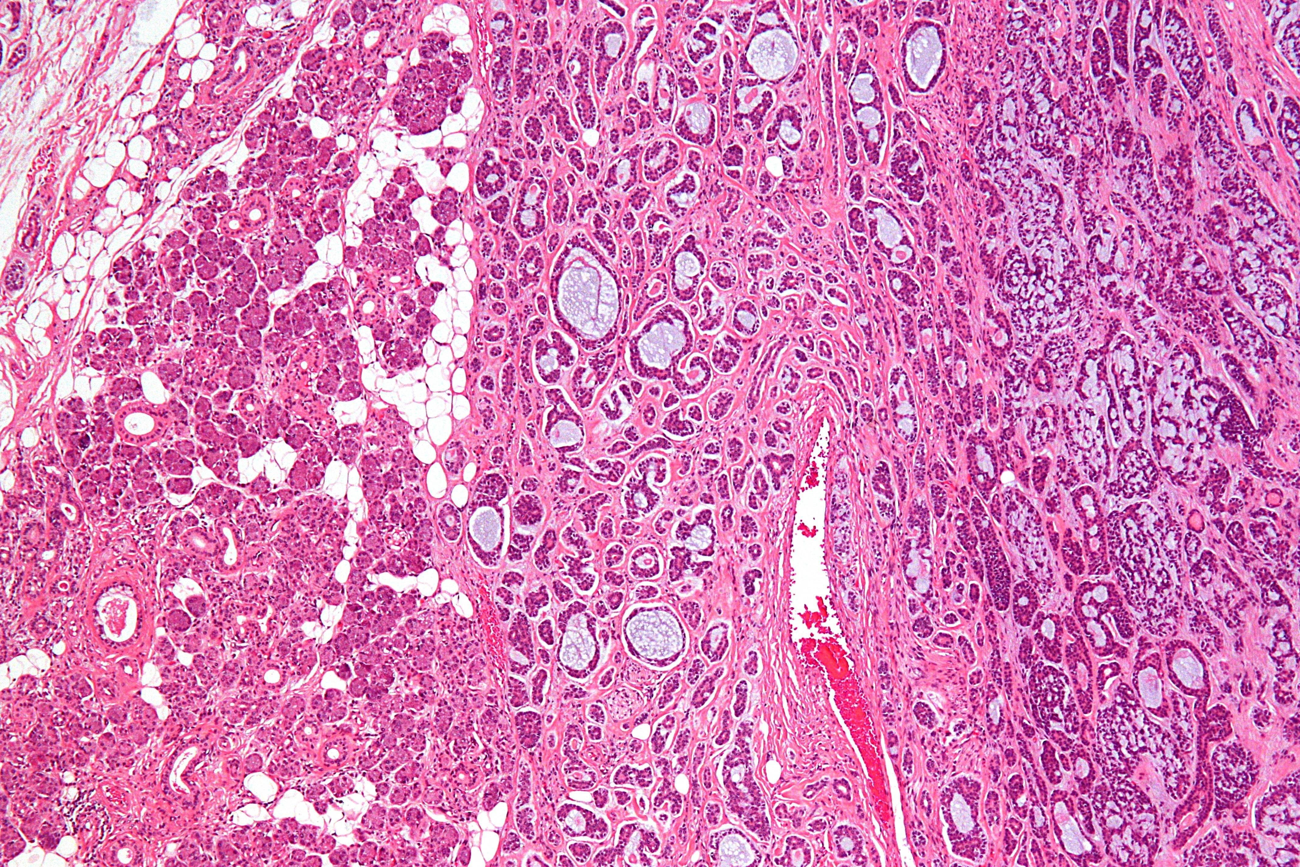 медуллярный рак щитовидной железы развивается
