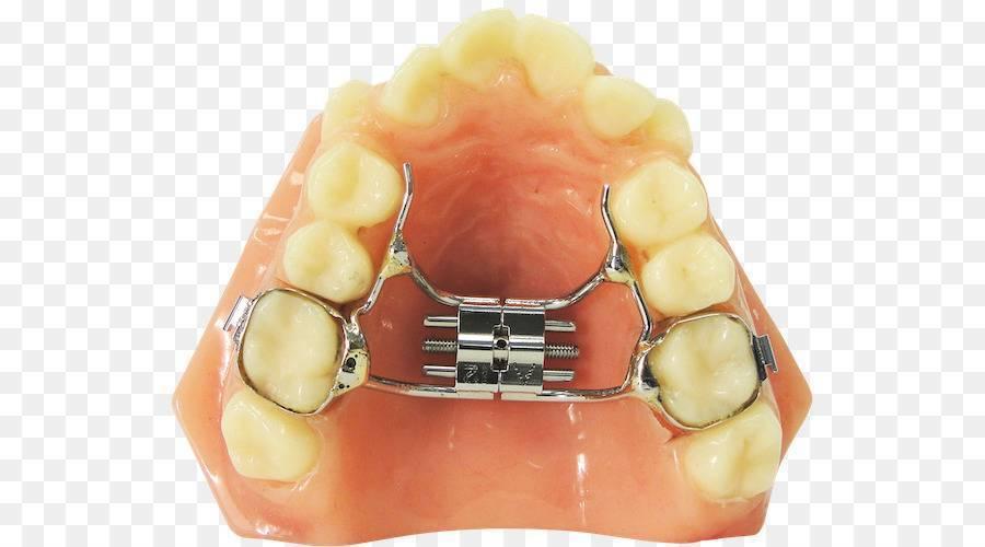 Особенности исправления прикуса с помощью пластинки для зубов