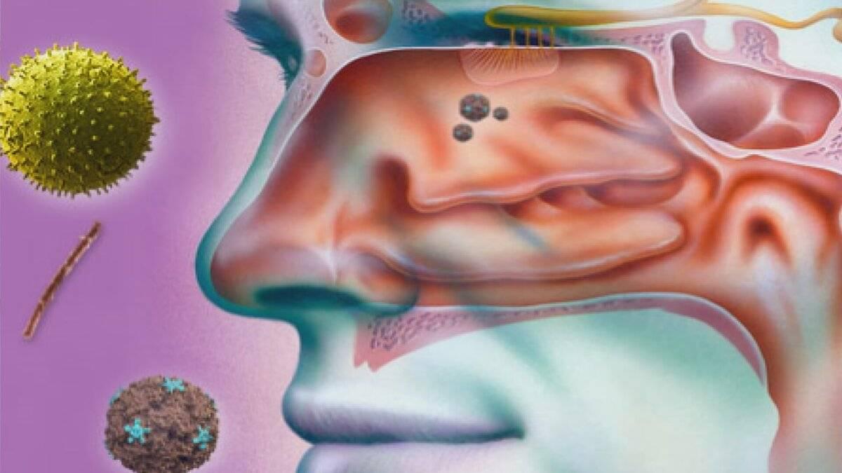 Как избавиться от хронической заложенности носа