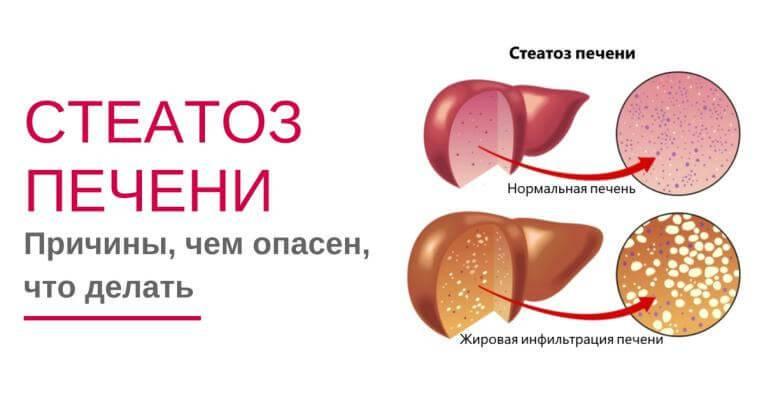Гепатоз (стеатоз печени). причины, симптомы, диагностика и лечение жирового гепатоза