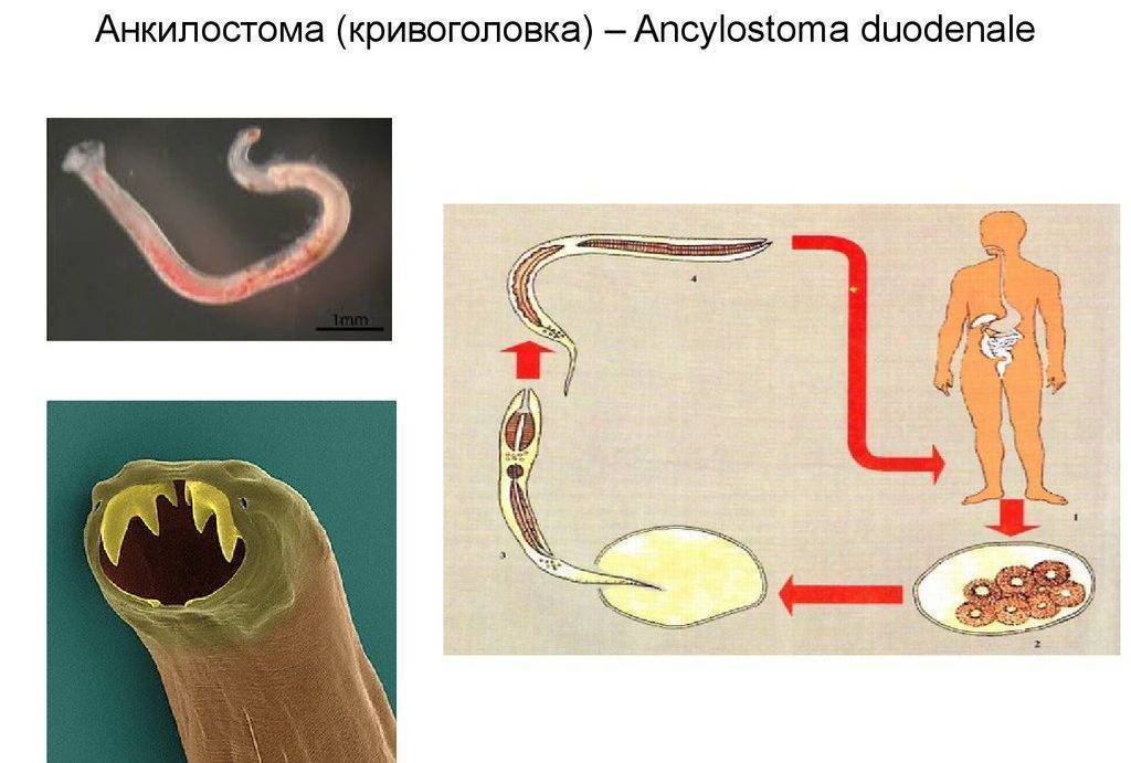 Анкилостомоз