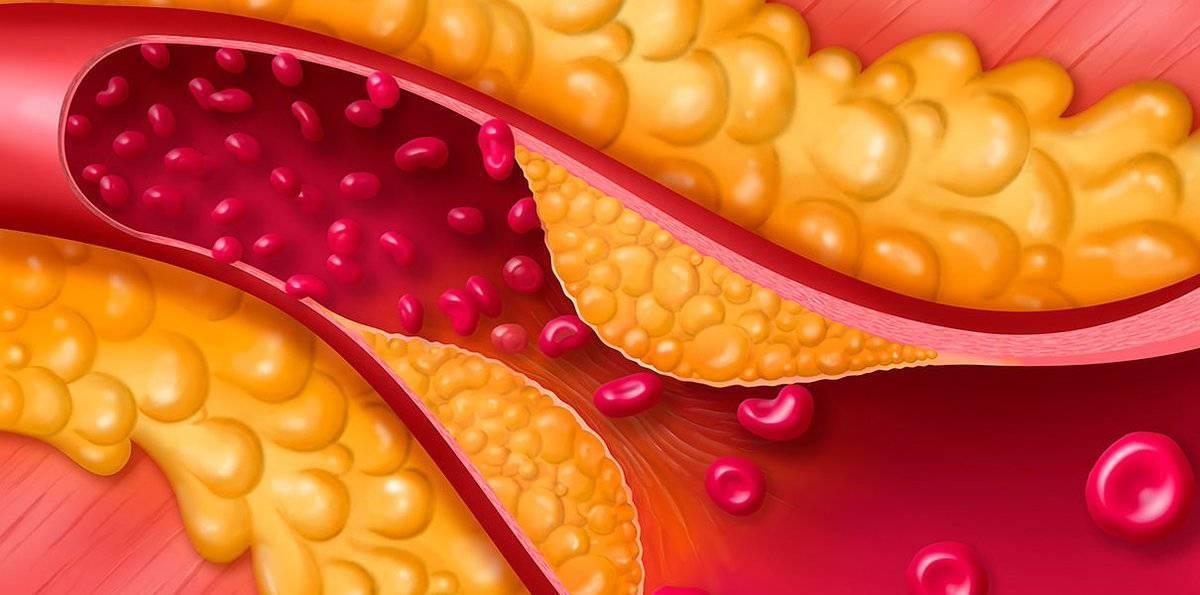 холестерин высокой плотности низкой плотности