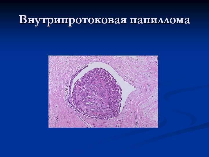 Внутрипротоковая папиллома молочной железы: симптомы, лечение, операция