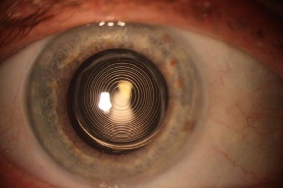 Может ли помутнеть современная интраокулярная линза — каков срок службы искусственного хрусталика глаза