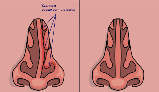 Искривление носовой перегородки - причины, виды, симптомы, последствия, методы лечения