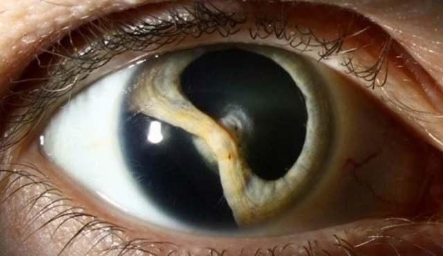 Колобома глаза – норма или патология, и как лечить?