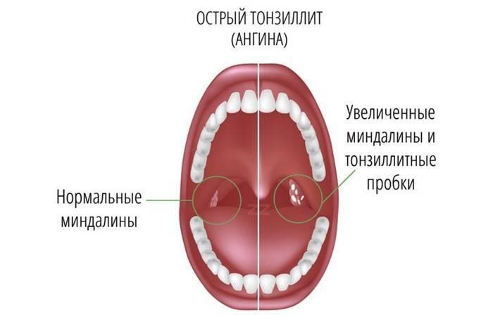 Удаление миндалин при хроническом тонзиллите