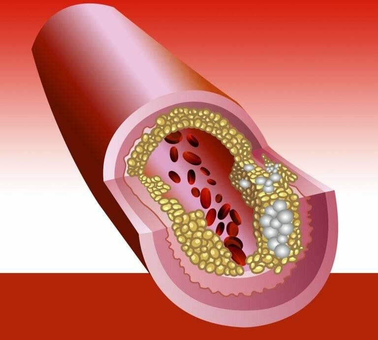 атеросклероз и артериальное давление