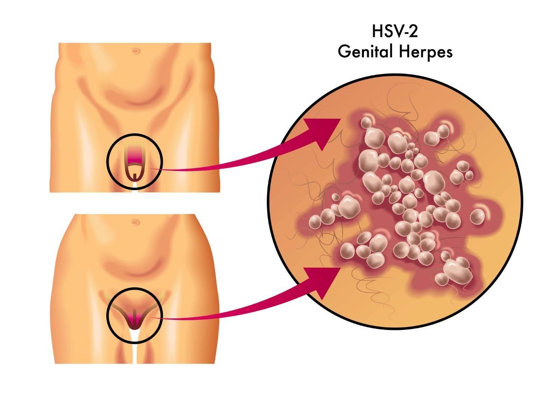Пути передачи генитального герпеса
