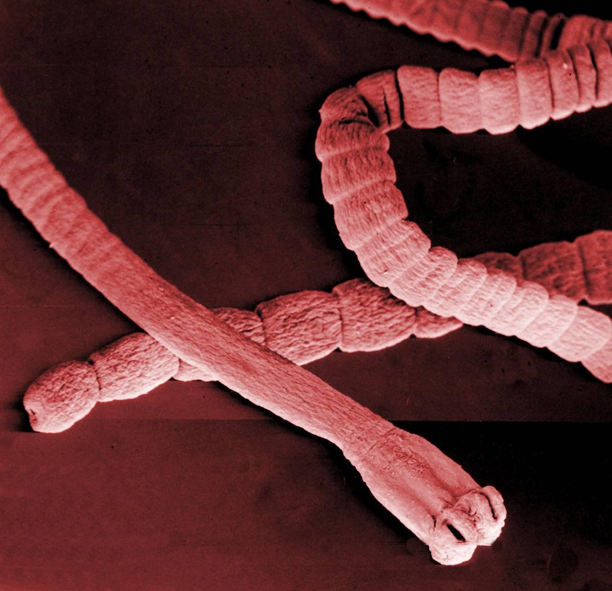 Таблетки от глистов – особенности современного лечения гельминтоза