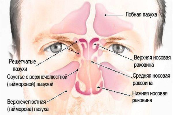 пневматизация пазух носа сохранена что это