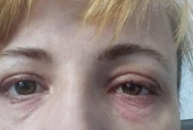 краснота вокруг глаз