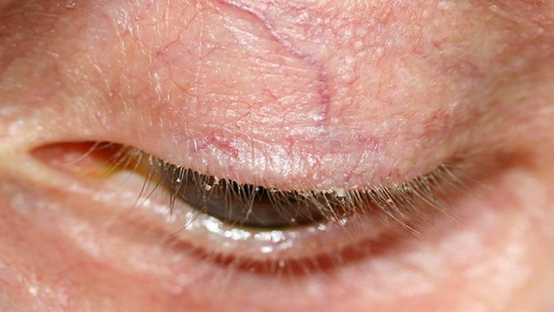 лечение демодекоза глаз у человека
