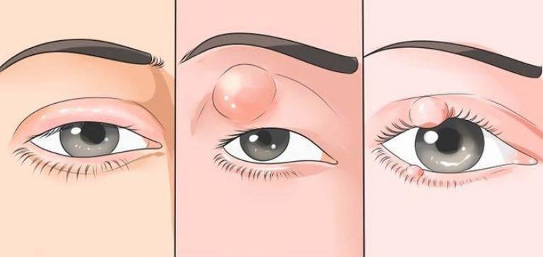 От чего появляется ячмень на глазу