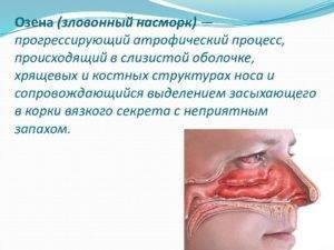 Запах из носа причины и лечение неприятных выделений