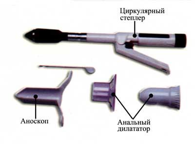 Операция лонго при геморрое: суть метода, показания и противопоказания, стоимость