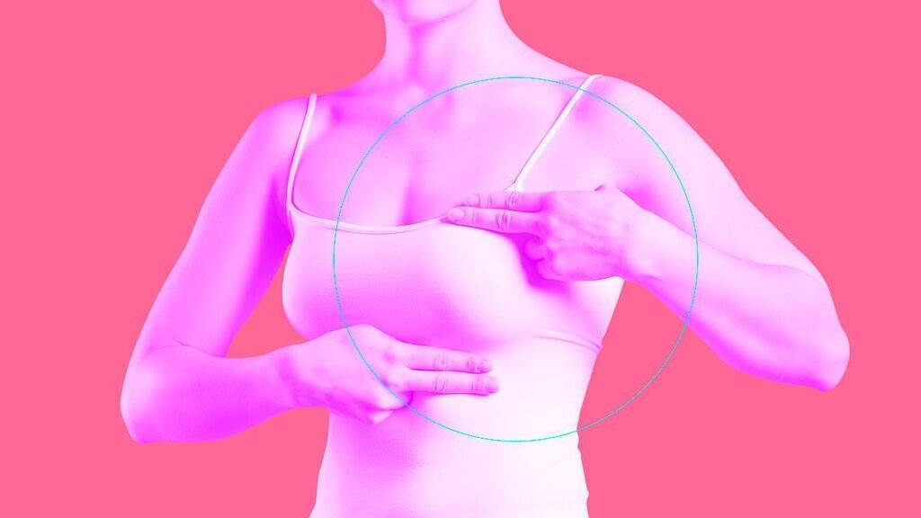 Самообследование молочных желез – скрининг рака груди
