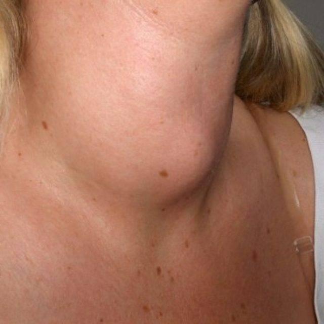 доброкачественная опухоль щитовидной железы