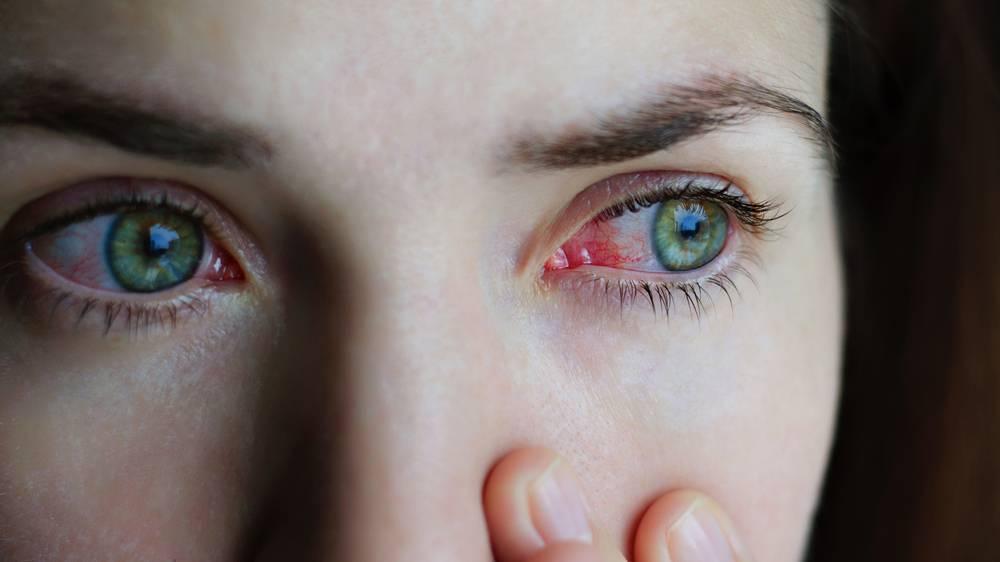 Причины дискомфорта при ношении контактных линз и способы его устранения