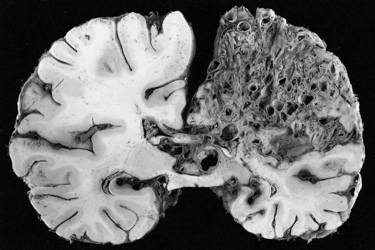 Энцефалопатия головного мозга – что это такое? симптомы и как лечить