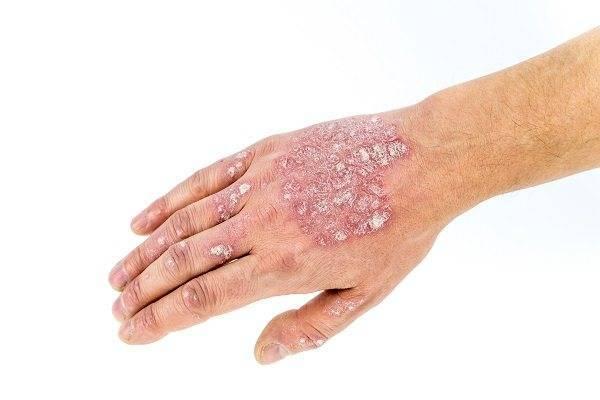 Начальная стадия псориаза: симптомы возникновения заболевания, методы купирования распространения болезни и варианты лечения (130 фото)