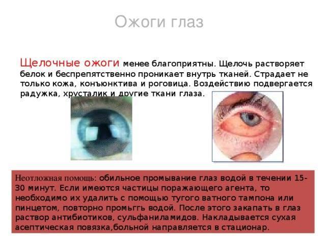 Что делать если болят глаза от сварки