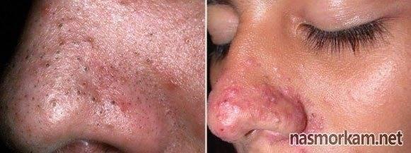 Фурункул, прыщ, гнойник в носу, внутри и снаружи: симптомы медикаментозное лечение