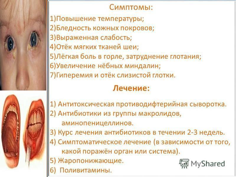 признаки дифтерии у детей
