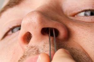 Гнойный прыщ на носу (гнойники) - как лечить, причины, у взрослых, при беременности, у ребенка