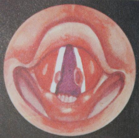Болезни голоса: хрип, сип, несмыкание голосовых связок
